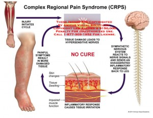 6. Complex Regional Pain Syndrome 1