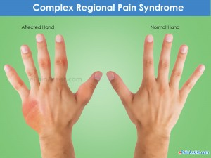 7. Complex regional pain syndrome