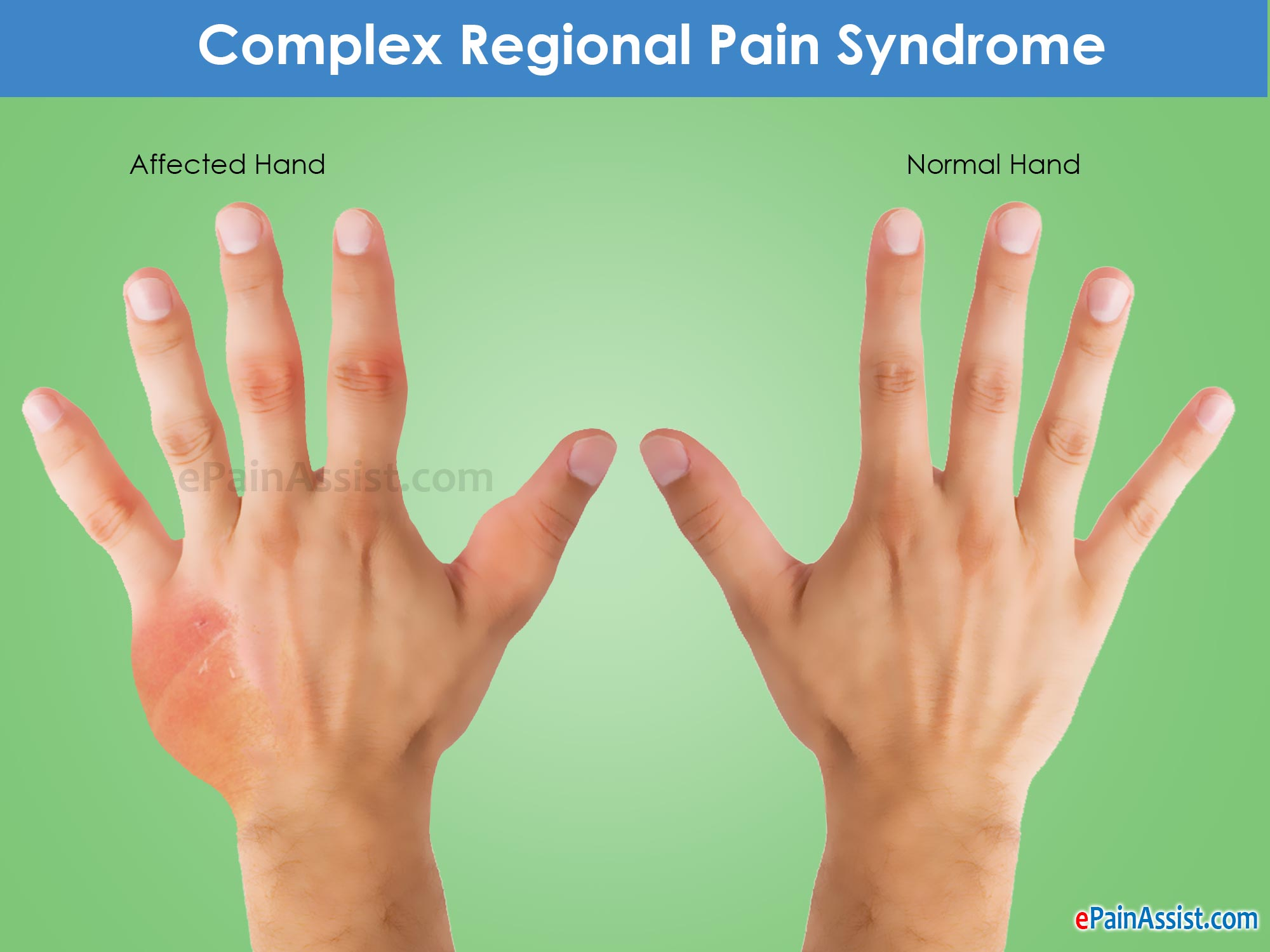 complex regional pain syndrome Complex regional pain syndrome (crps) is a debilitating condition affecting the  limbs that can be induced by surgery or trauma this condition.