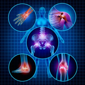 Arthritis can be found in a lot of joints in the body. The hand knee hip and shoulder are the   most common.